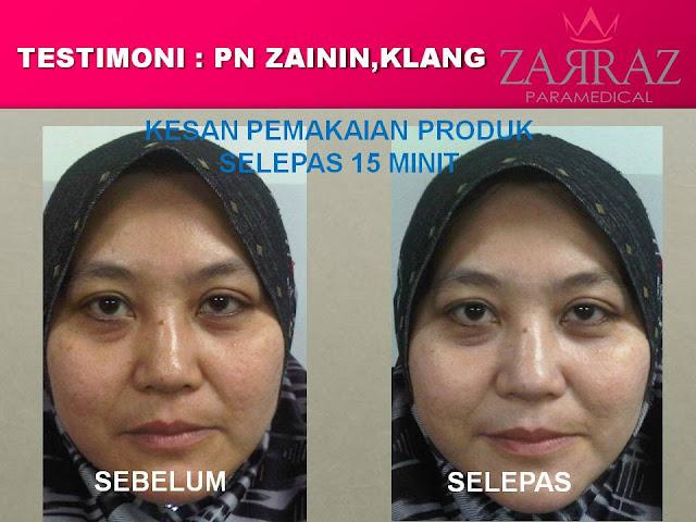 rawatan kulit kusam, produk zarraz paramedical
