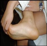tratamiento medico para acido urico alto alimentos q favorecen el acido urico cuanto es lo normal del acido urico