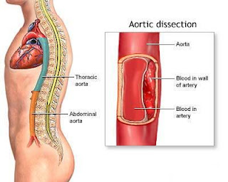what is thoracic aortic dissection