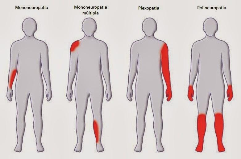 dor nas pernas causas