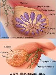obat herbal kanker payudra