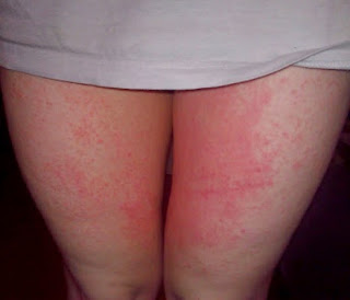 obat kulit gatal bersisik yang alami
