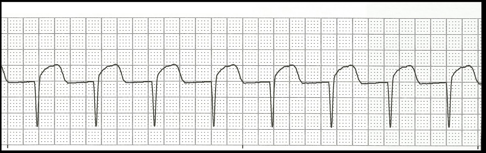 Accelerated junctional rhythm jpgAccelerated Junctional Rhythm