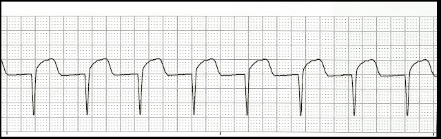 Float Nurse: EKG Rhythm Strip Quiz 98: Junctional rhythms