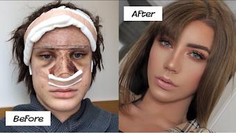 id Facial Feminization Surgery