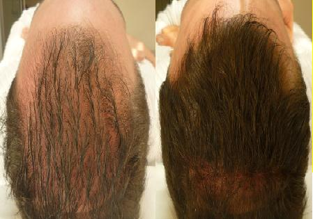 hair transplant procedures