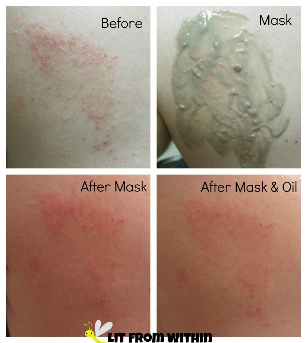 Hubby's eczema rash using Majestic Pure Indian Healing Clay