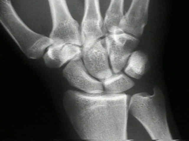 MBBS Medicine (Humanity First): Ulnar tunnel syndrome