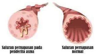 Penyebab Pemicu Asma