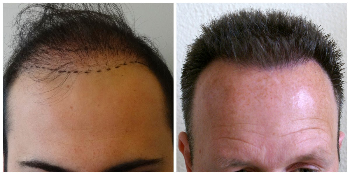 Find Out Why Cheap Tattoo Cheap Hair Transplantation And Cheap