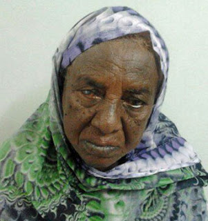 Rogia Fateh Alrahman 75 year old she has Glaucoma in both eyes