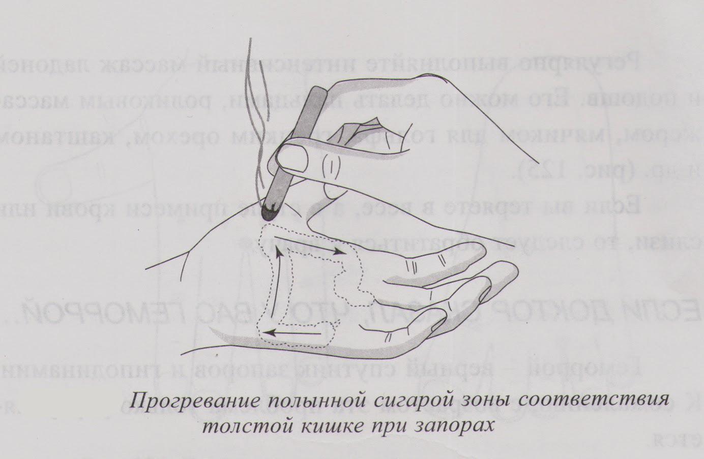 zhzhenie-v-anuse-posle-defekatsii