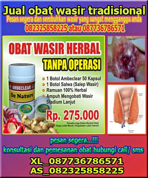 http://cara-mengobati-wasir-ambeyen.blogspot.com/