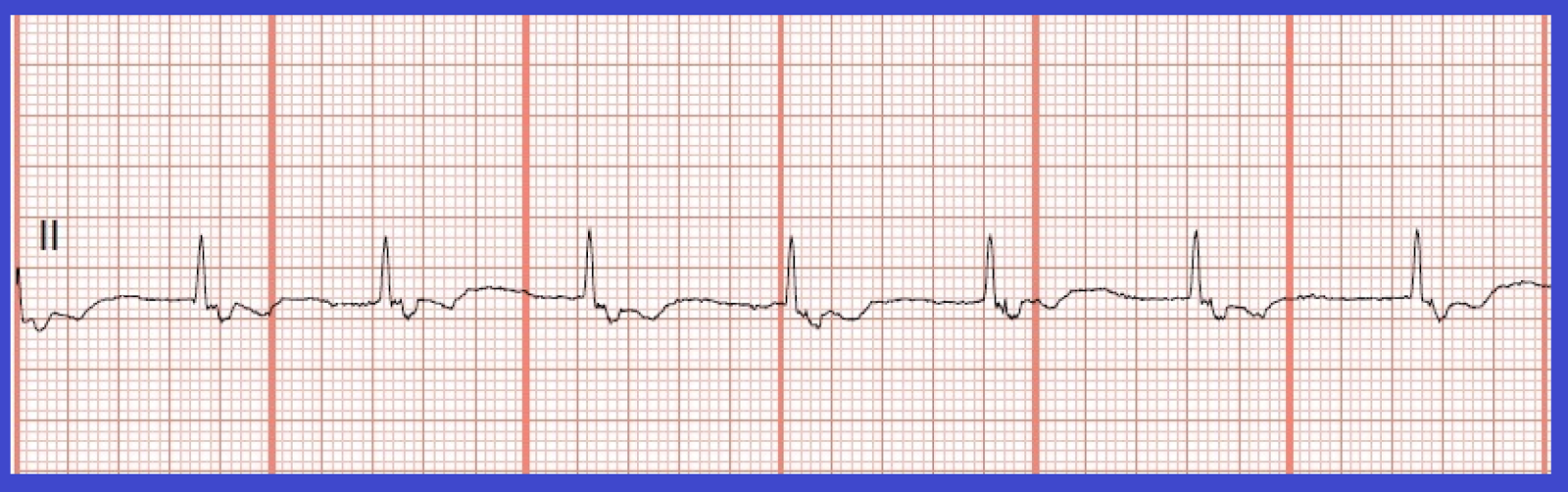 Accelerated junctional rhythm pngAccelerated Junctional Rhythm