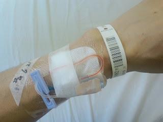 写真:点滴を終えた後の左手首。手首から肘まで3分の1(7センチ)くらいの位置に針は挿したままの状態で、上から大判の透明テープで固定する。