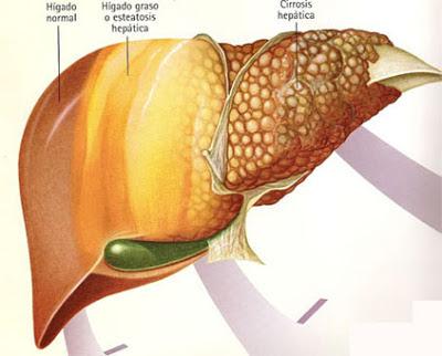 TRATAMIENTO CON NUTRICION HEPATICA