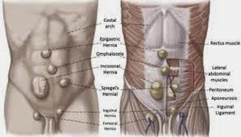 celana dalam hernia, celana hernia, celana untuk hernia, jual celana hernia, obat hernia, turun berok