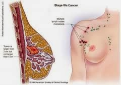 http://obatsinusitisakut.blogspot.com/2013/11/obat-kanker-payudara-untuk-ibu-hamil.html