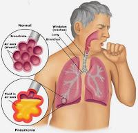 Obat Lendir Pada Tenggorokan