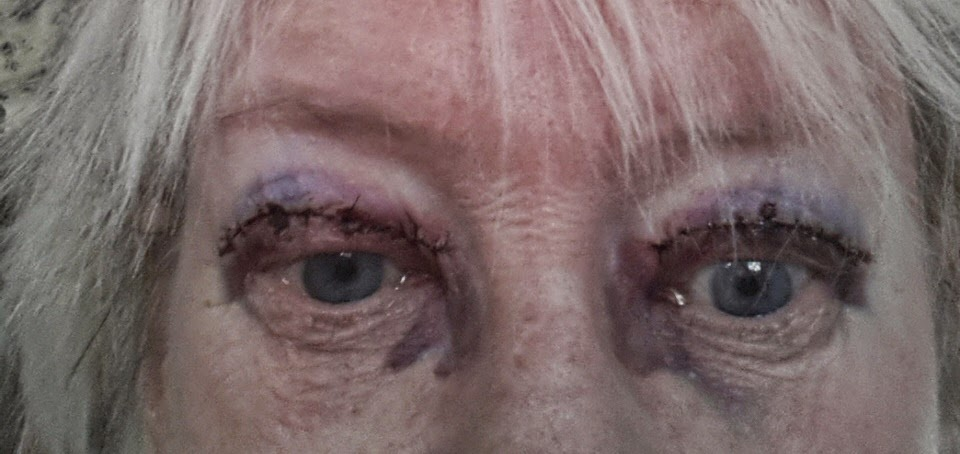 läkning efter ögonlocksoperation