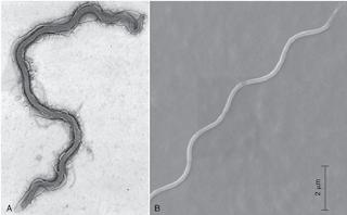 Hình 1: Ảnh Borrelia burgdoferi dưới kính hiển vi