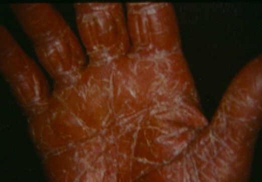 Betametazon el ungüento de la psoriasis