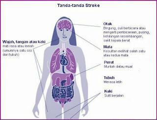 kenali gejala stroke dan pencegahannya