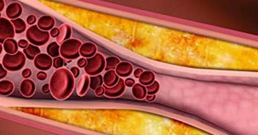 arteriosclerosis definition : what is arteriosclerosis? | health, Human Body