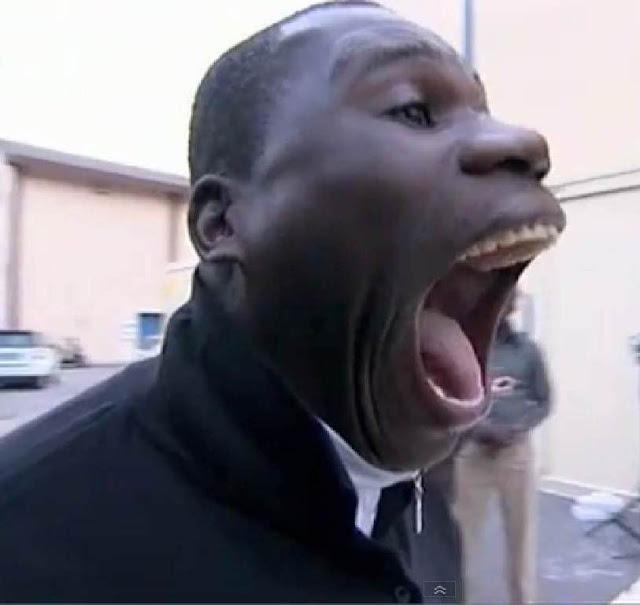 Angolano tem boca maior do mundo