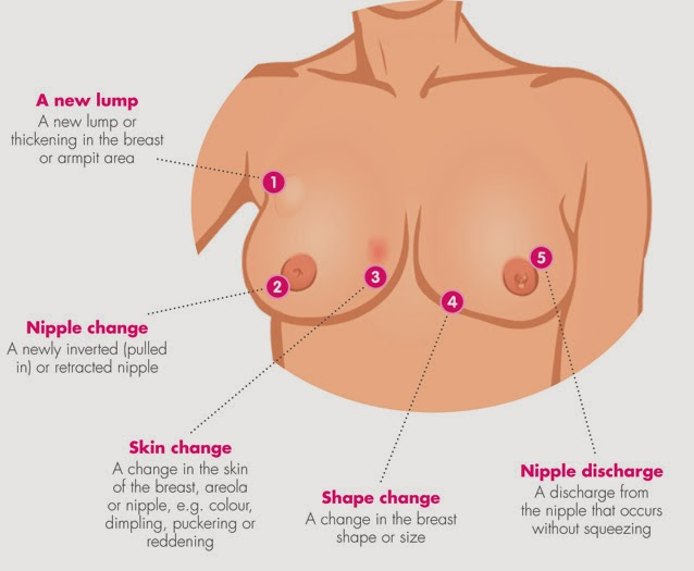 Symptoms of breast cancer in young women