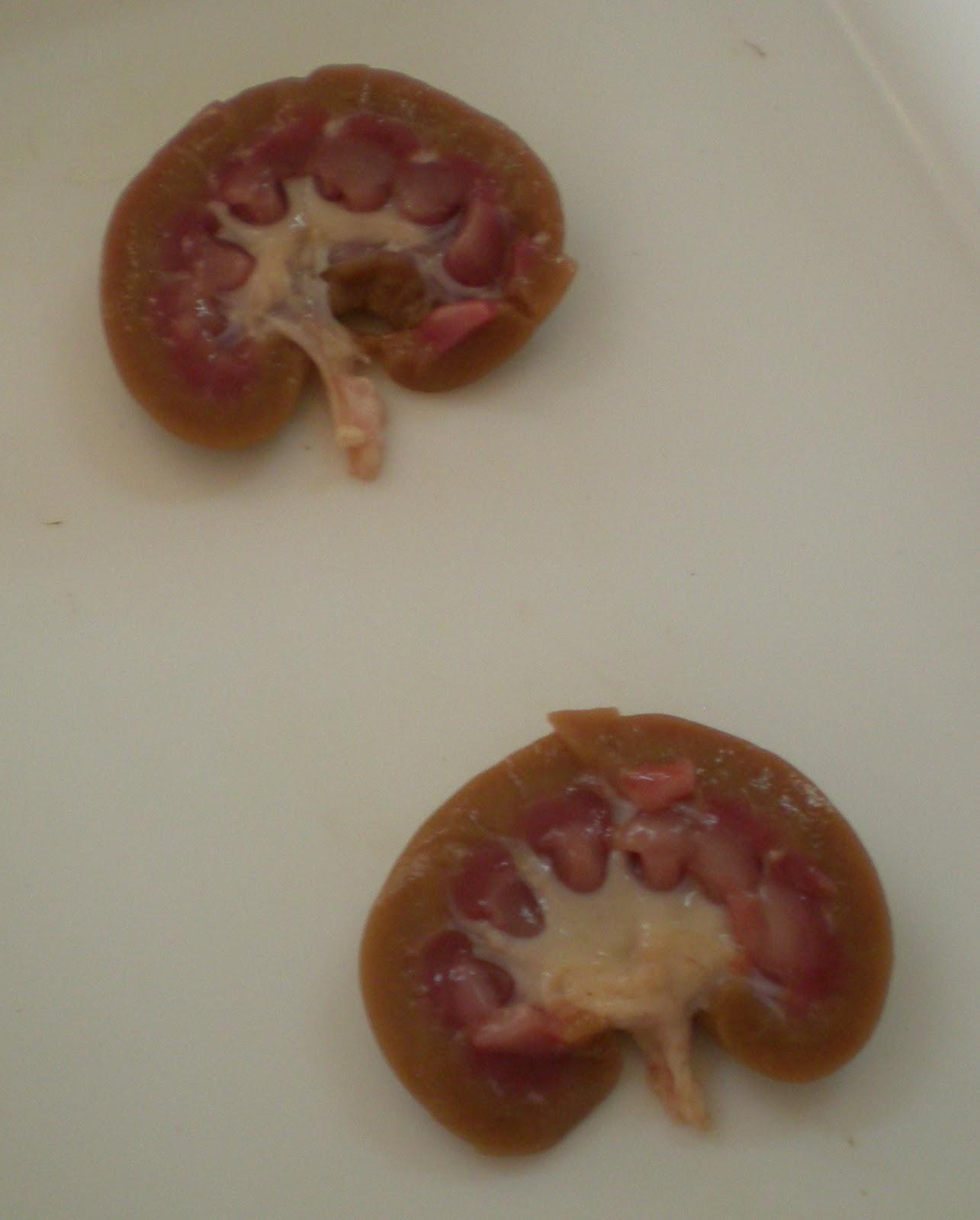 EL CUERPO HUMANO: Disección de un riñón