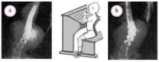 Kelainan+lordosis+dan+kifosis Gangguan pada Sistem Gerak
