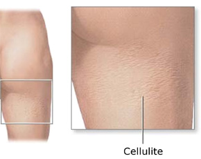 selulit, singkayo, atasi selulit, obat alami selulit, penyebab singkayo