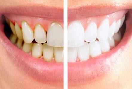 cara alami menghilangkan karang gigi