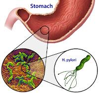 El helicobacter pylori es una bacteria que coloniza nuestro estómago