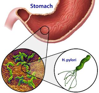 Helicobacter pylori tratamientos naturales para eliminarla