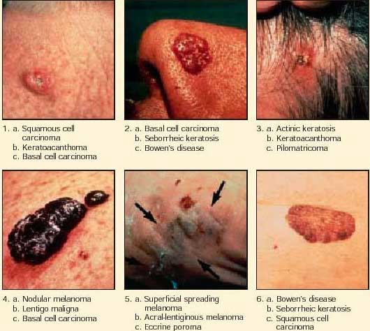 Colon Cancer Ribbon Tattoos