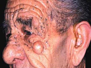 Síndrome de Favre-Racouchot