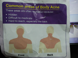 common area of body acne