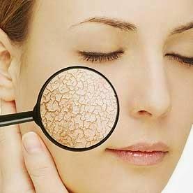 Cara Mengatasi Kulit Wajah yang Kering dan Kusam