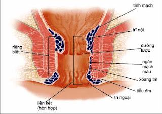 Kiến thức tổng quát về bệnh trĩ ngoại