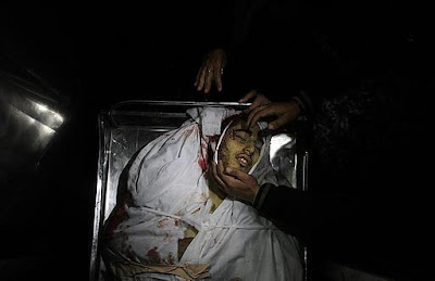 Imagens fortes-atenção- crimes de Israel - foto 22