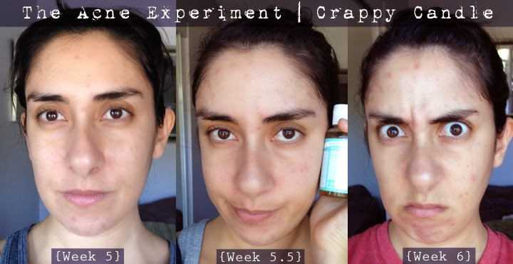 Dr. Bronners for POD/Acne Before and After :: The Acne Experiment