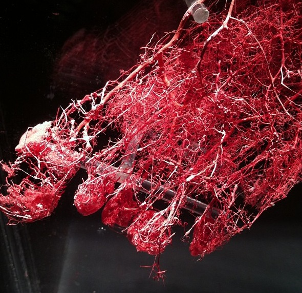 Picture Of Integumentary System Parts besides Organs Of Lymphatic System And Their Functions likewise Lymphatic System Immunity Human Anatomy Physiology Lecture as well Female Anatomy Skeletal System additionally F 180. on human blood circulatory system