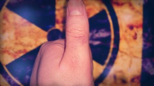 Bruised thumb