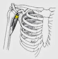 coracho brachial