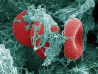 obat herbal penyakit kanker darah