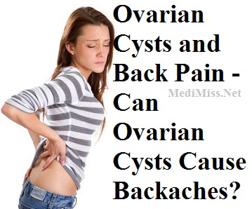 Ovarian Cysts And Back Pain Can Ovarian Cysts Cause