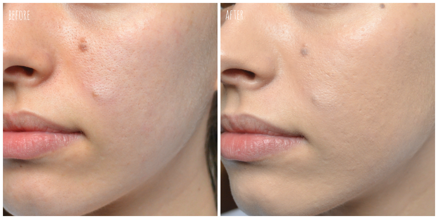 before foundation left, after application right
