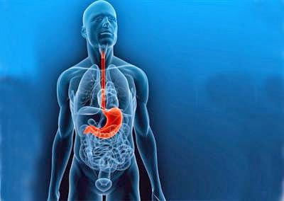 Symptoms of gastric cancer
